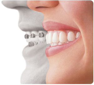 invisalign at Drummoyne