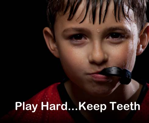 mouthguards at Drummoyne dentist
