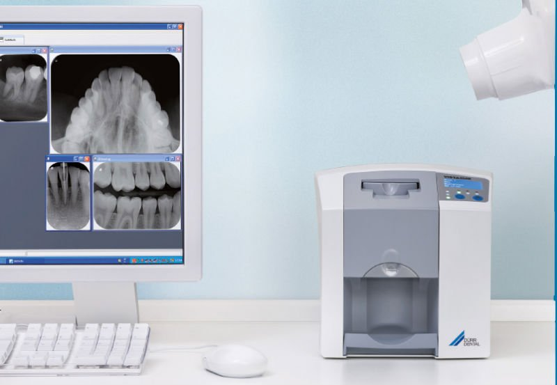 Conversion to Digital Radiography from Film Radiography